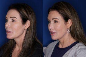 59 year old female 1 year post lip lift