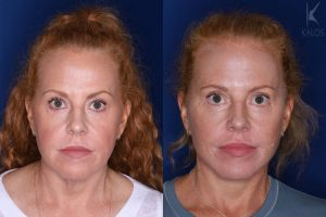 53 year old 3 months following upper and lower blepharoplasty and a mini extended deep plane facelift